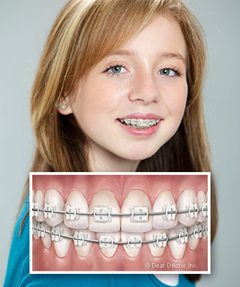 girl-with-ceramic-braces